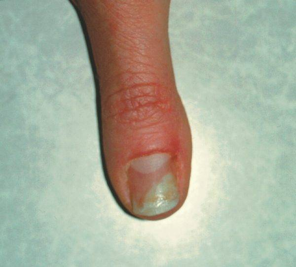 What is nail fungal infection? | Nails@HomeSg