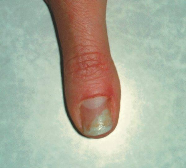 ... Nail Techs! An Australian/NZ Nail Forum • View topic - Nail diseases