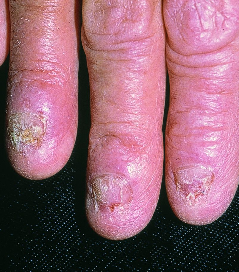 What is nail fungal infection? « Nails@HomeSg